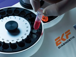 Biosen Gerät Messung